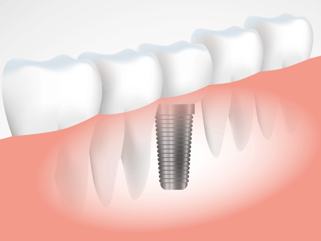 implant170325.png